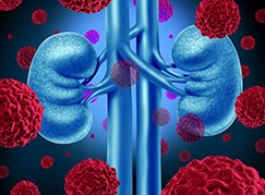 Kidney cancer medical concept as cancerouse cells in a human body attacking the urinary system and renal anatomy as a symbol for tumor growth treatment and risk.
