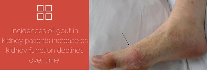high level of uric acid in blood is characteristic of gout in ankle home remedies does uric acid cause joint pain